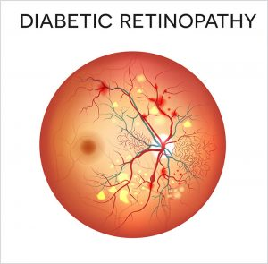 Diabetic Retinopathy Arizona Retina Associates