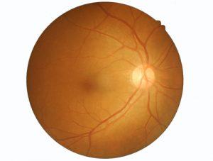 Retinal veins